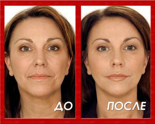 Ботокс до и после фото